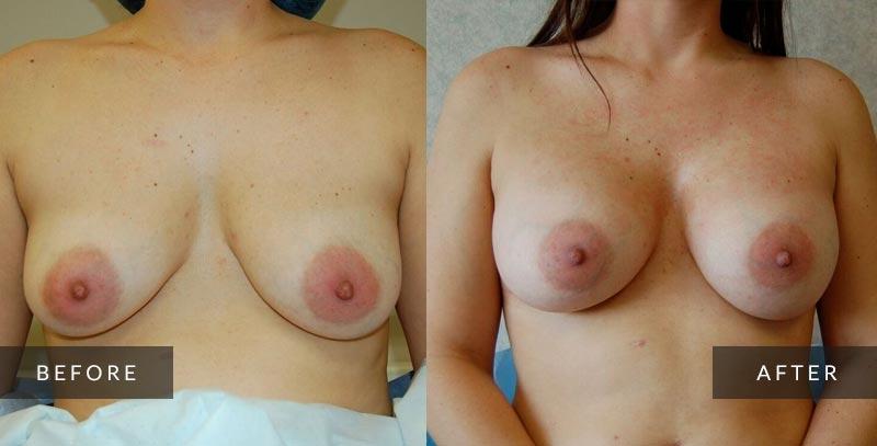 Breast Enlargement Photos - Breast Augmentation Photos - Philadelphia, PA