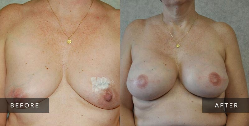Breast Reconstruction Photo Gallery | Philadelphia, PA