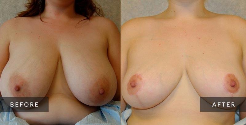 Breast Reduction Photos - Cosmetic Surgeon Philadelphia, PA
