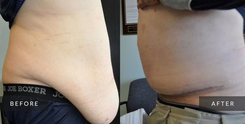 Abdominoplasty photos - Tummy Tuck - Before & After
