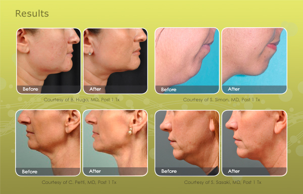 facial-contouring-email-results-600x385